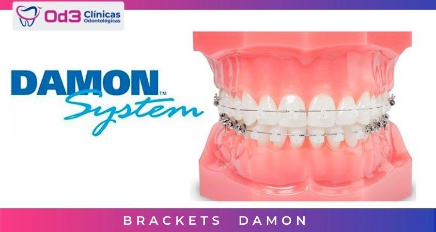 BRACKETS DAMON SYSTEM