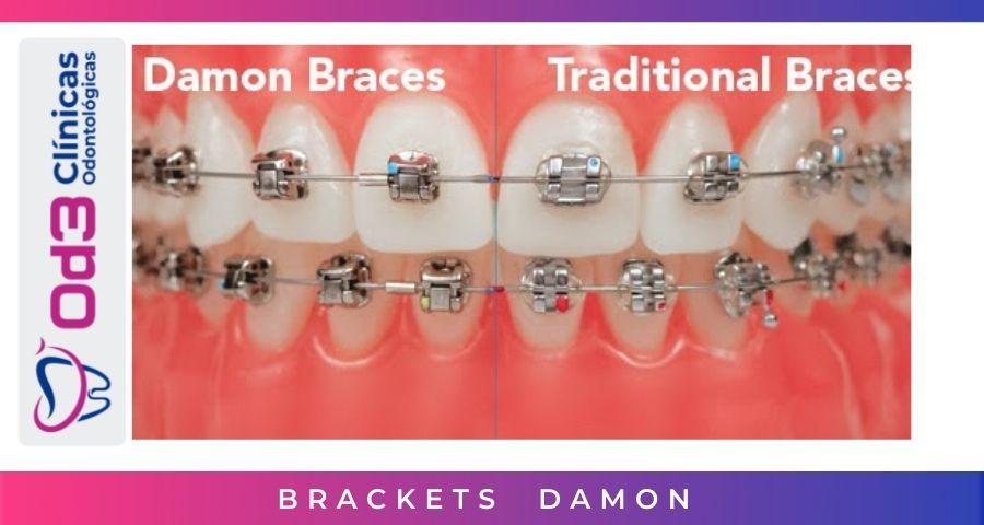 comparacion BRACKETS DAMON SYSTEM
